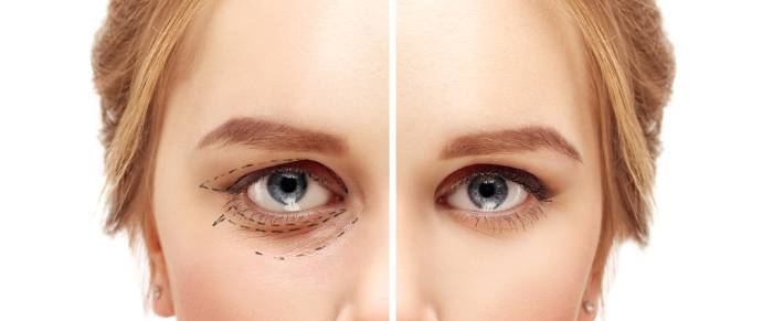 EYELID (BLEPHAROPLASTY) AND PTOSIS SURGERIES